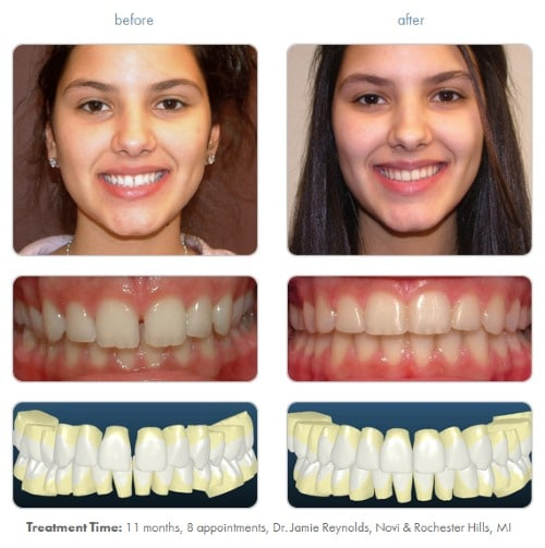 Clear Braces Before and After 1