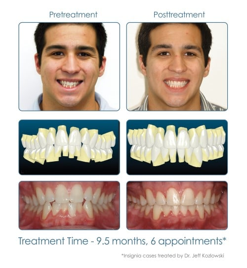 Clear Braces Before and After 2