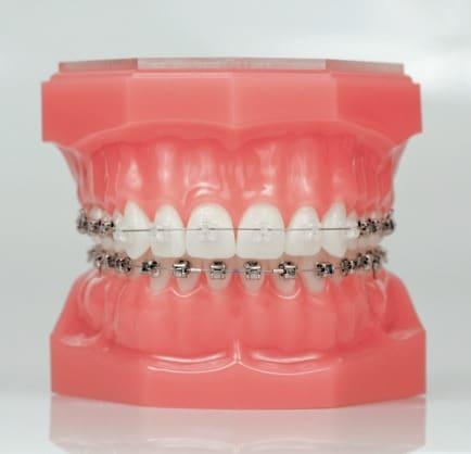 clear-vs-metal-braces-image-damon