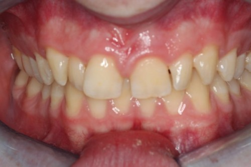 Invisalign for Deep Bite, space between teeth, crowding