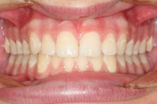 Invisalign for enamel decalcification