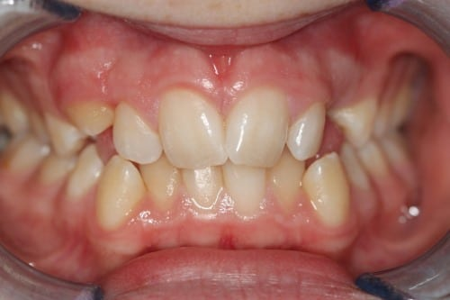 Invisalign for narrow jaw
