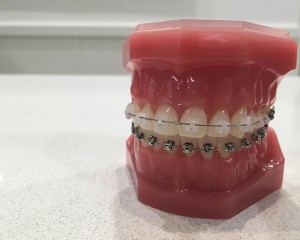 Teeth Braces For Adults - Clear Metal Braces