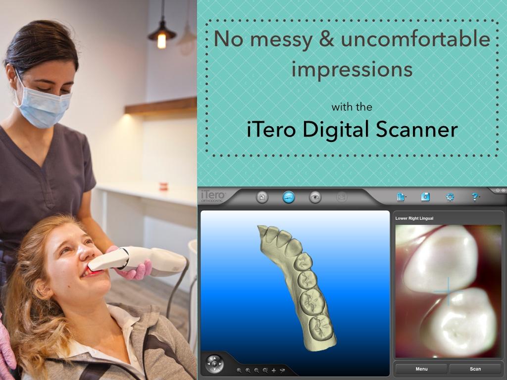 iTero scanning at CCC Smiles