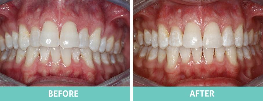 Invisalign Before and After, North Shore Sydney, Brendan