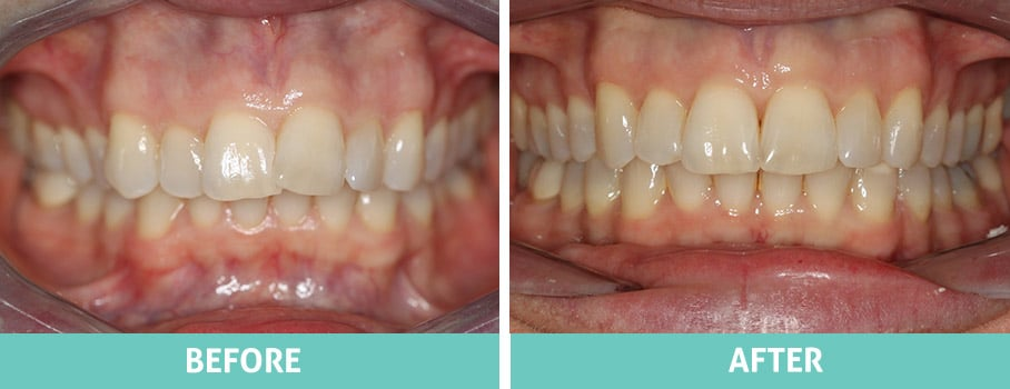 Invisalign Before and After North Shore Sydney Carla