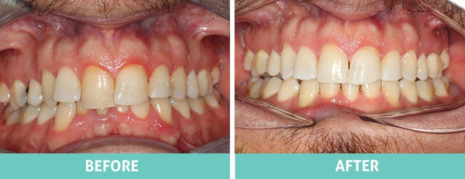 Invisalign-Before-and-After-North-Shore-Sydney-Nathan-1