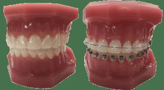 aligners-braces