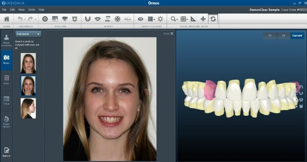 smile-design-insignia-braces-image