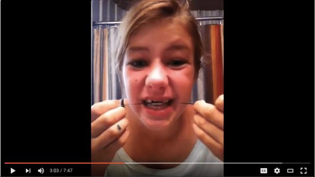 diy braces