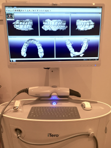 orthodontic-scanner