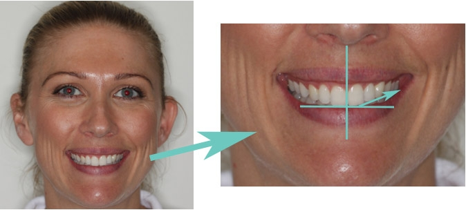 Occlusal Tipping